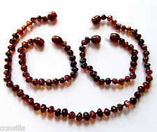 Genuine Baltic amber teething necklace or anklet, big dark cognac baroque beads