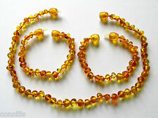 Genuine Baltic amber teething necklace or/and anklet, big honey baroque beads