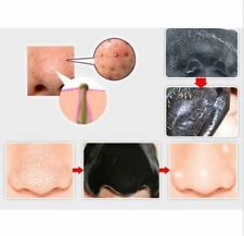 Mineral Mud Nose Face Mask Blackhead Pore Cleaner Removal Strips Spots UK SALE