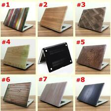 Duro Custodia Laptop Cover Per Macbook Pro Retina 13.3 inch Accesori Portatili