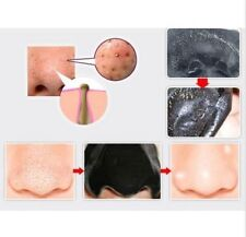 Blackhead Nose Face Mask Mud  Pore Cleaner Removal Strips Away Spots