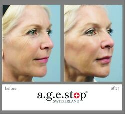 Age Stop Switzerland Powerful Competitor of Marie Claire. Anti-Wrinkles Skin