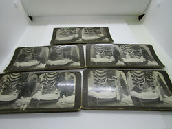 Lot Of 5 Stereoviews By American Stereoscopic Company
