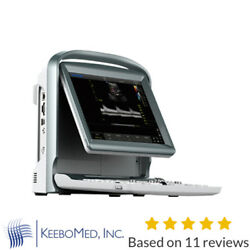 Color Doppler Vascular Ultrasound Scanner With Two Probes, Battery - Chison Eco5