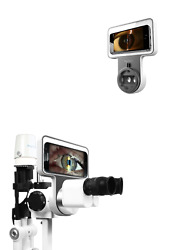 Refurbished Phonto Imaging Optic System Apple And Android Phone Slit Lamp Adaptor