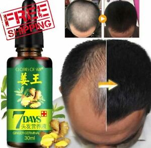 Hair Growth Products For Men Women Natural Oil Serum Loss Grow Fast Treatment