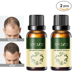 2PCS Hair Growth Products For Men Women Natural Oil Serum Loss Grow Treatment US