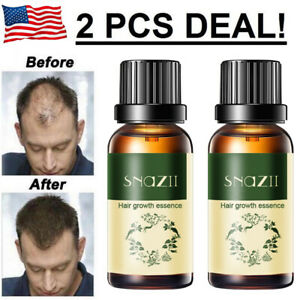 2x Hair Growth Products For Men Women Natural Oil Serum Loss Fast Grow Treatment