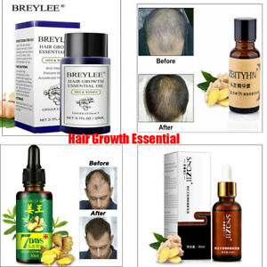 US~Hair Growth Products For Men Women Natural Oil Serum Loss Grow Fast Treatment