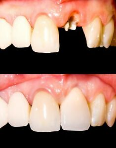 Temporary Tooth Kit Temp Repair Replace Missing DIY Safe Easy Video Link include $6.95