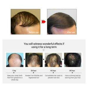 Hair Growth Products For Men Women Natural Oil Serum Loss Grow Fast Treatment.