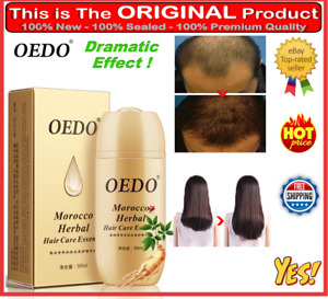 Hair Loss Treatment For Women And Men Products Male Regrowth Growth Supplements