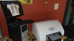 chiropractic digital xray cr reader with warranty nucca software x ray $8400.00