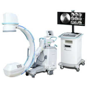 Affordable C-Arm X-Ray System - Oscar Classic Machine for Fluoroscopy Imaging