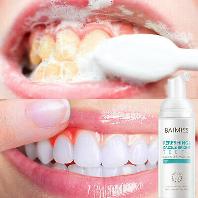 BAIMISS Tooth-Cleaning Mousse Toothpaste Teeth Whitening Oral Removes