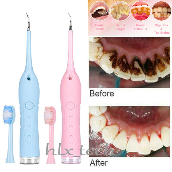 Dental Sonic Ultrasonic Air Scaler Tooth Whitening Cleaning Tartar Plaque Remove
