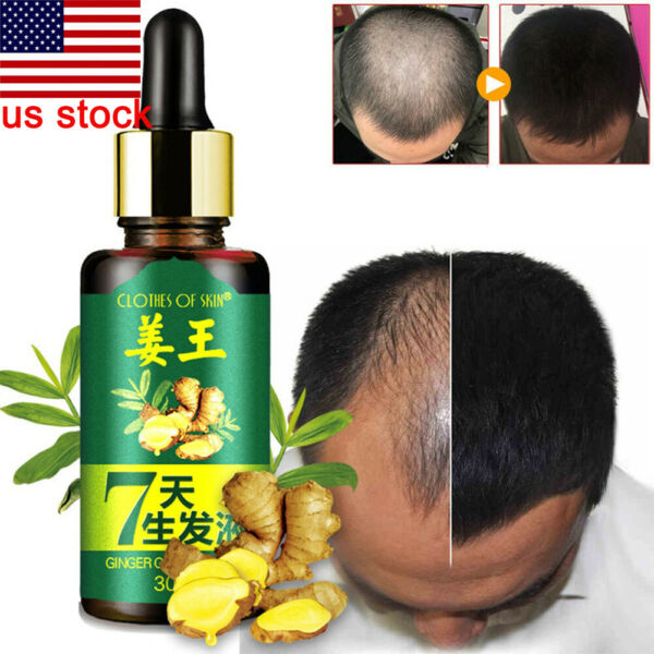 US Men 30ml 7 Days Hair Growth Care Ginger Essential Oil for Dry Damaged Hairs