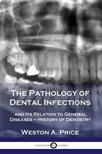 Price Weston A Pathology Of Dental Infections BOOK NEW
