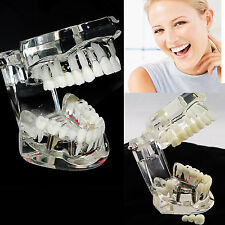 USA SALE Dental Removable Teeth Study Teaching Teeth Model Adult Typodont Model