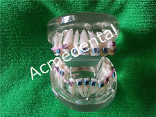 Dental Orthodontics Treatment Model Has Wires Metal Bracket Ligature Ties Tubes