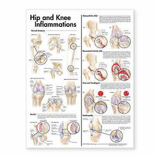 HIP AND KNEE (LAMINATED) POSTER (66x51cm) ANATOMICAL CHART NEW EDUCATIONAL