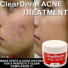CLEARDERM ACNE CREAM CLINICALLY PROVEN WORKS FAST BEAUTIFUL FRESH CLEAR SKIN