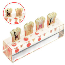 Dental pulp Pathology Treatment Study Teaching Teeth Model #4018