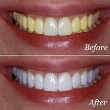 44% STRONG TEETH WHITENING STARTER KIT GEL TOOTH - STRONGEST ON EBAY