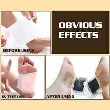10 Pairs Detox Foot Pads Patch Detoxify Remove Toxins Weight Loss Stress Relif