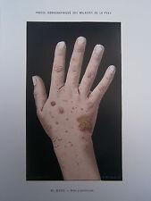 Gravure médecine couleur 1900 maladie de la peau : GALE PUSTULEUSE