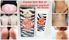 10xCeam Eliminate Stretch Mark Removal Clear Fast Line Scar Dark Spot Whitening