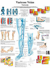 A3 Medical Poster – Varicose Veins (Text Book Anatomy Pathology Doctor Picture)