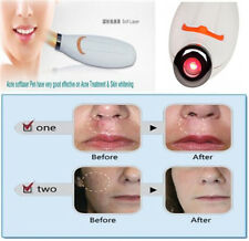 Laser Therapy Pen Acne Scar Blemish Wrinkle Herpes Cold Sore Treatment Device