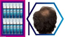12 MONTHS KIRKLAND FOAM MINOXIDIL 5% MENS HAIR LOSS REGROWTH GENERIC TREATMENT