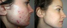 Anti- Acne Treatment Cream with Scar fading + Face Wash Dr. J's Naturals -Works!