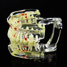 New Teeth Tooth Transparent Adult Pathological Model for Dental Study
