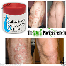WHITFIELDS OINTMENT Salicylic & Benzoic Acid & Sulfur CLEARS PSORIASIS ECZEMA