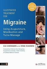 Illustrated Treatment for Migraine Using Acupuncture, Moxibustion and Tuina Mas
