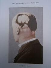 Gravure médecine couleur 1900 maladie de la peau : PELADE