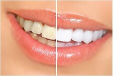 1 Hour Express Professional Whitestrips Teeth Whitening Strips - 2 strips -