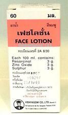 Sulphur Ointment & Zinc Oxide Lotion. ACNE- ROSACEA- ZZ- DEMODEX Face Cream