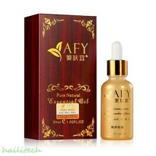 30ml AFY Magic Essence Oil for Nose Lift Up Aquilin Nose Remedies Rhinoplasty