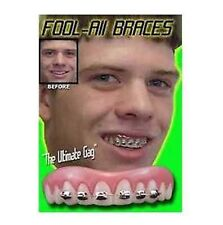 Instant Smile Billy Bob Braces Nerd Fake Teeth Novelty Cosmetic Top Veneer