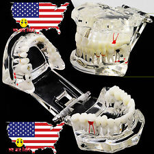 Dental Prosthetic Implant Disease Teeth Model Restoration & Bridge Tooth US SALE
