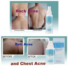 BODY ACNE SPRAY TREATMENT PIMPLE BLACKHEAD CLEAR  BACK-CHEST-BUTT ANTI BACTERIA