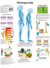 A3 Medical Poster – Osteoporosis (Text Book Anatomy Picture Pathology Doctor GP)