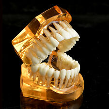 Dental Jaw Adult Typodont Tooth Model Teeth Removable Transparent Upper Lower Q