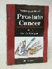 Management of Prostate Cancer