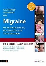 Xing Xiaomin, Cui Chengbin Illustrated Treatment for Migraine Using Acupuncture,