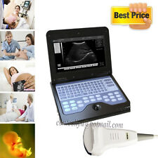 New CE Portable Diagnostic Machine Ultrasound Scanner Ultrasonic CMS600P2,Convex